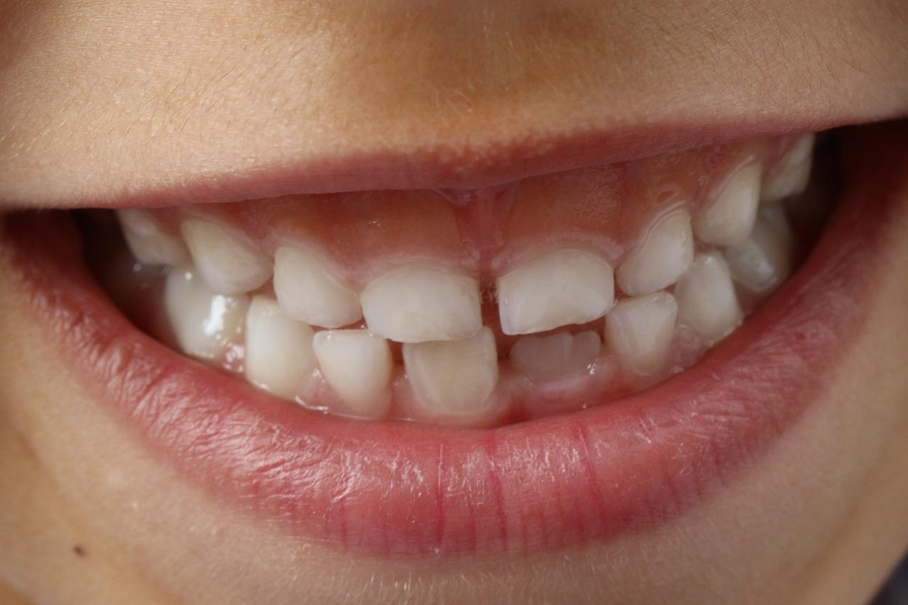 Czy założenie aparatu ortodontycznego jest bolesne?